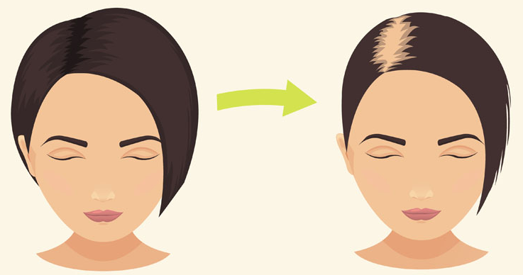 Here is an animation for postpartum hair shed before and after.